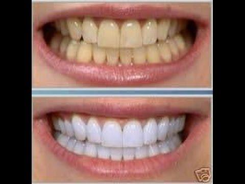 metodi naturali per sbiancare i denti